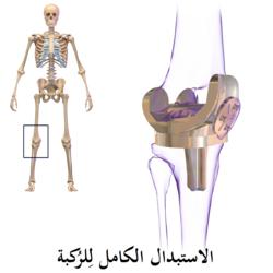 استبدال الركبة ويكيبيديا، الموسوعة الحرة