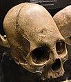 Kulturama Museum - skull 2.jpg