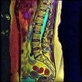 LSV MRI T1FSE T2frFSE STIR Case04 05.jpg