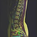 Lumbosacral MRI case 13 04.jpg
