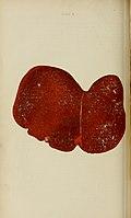 Manual of antenatal pathology and hygiene - the foetus (1902) (14598271327).jpg