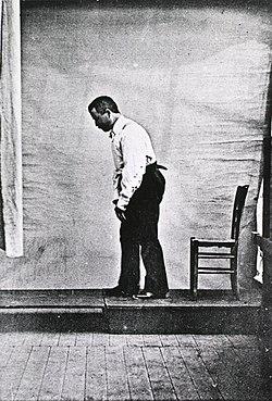 Morbo Parkinsoni aegrotus anno 1892 pictus
