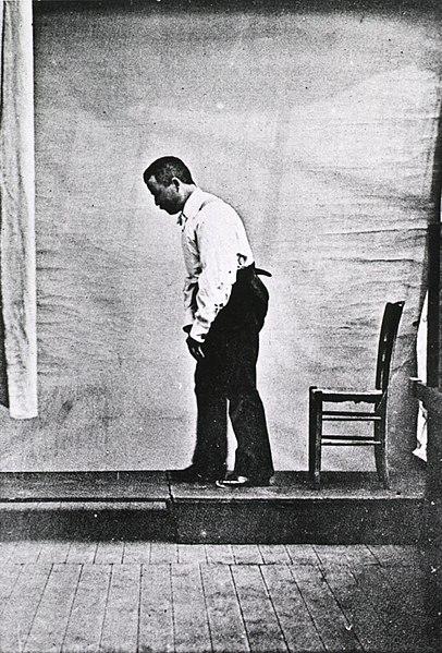 File:Paralysis agitans-Male Parkinson's victim-1892.jpg