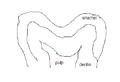 Pitandfissurecaries01.PNG