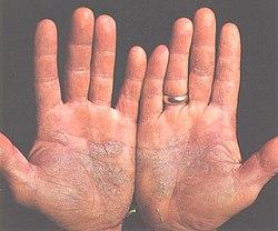 Los ungüentos de la psoriasis skin kap el precio