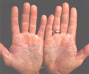 Psoriasis on a pair of hands. The disease can be caused by faulty JAK-STAT signalling.