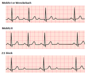 Second degree heart block.png