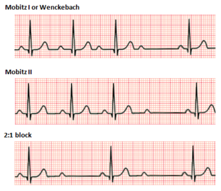 Second-degree atrioventricular block disease of the electrical conduction system of the heart. It is a conduction block between the atria and ventricles.