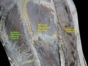 Rectus abdominis muscle - Image: Slide 10hel