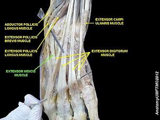Extensor indicis muscle - Image: Slide 4RRRRR