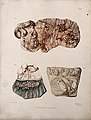 Three sections of diseased intestines. Colour mezzotint by W Wellcome V0009759EL.jpg