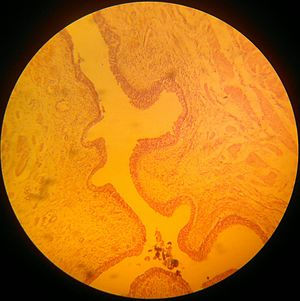 Transitional epithelium - Transitional striated epithelium