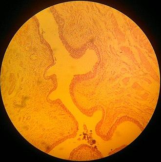 Transitional epithelium - Transitional striated epithelium