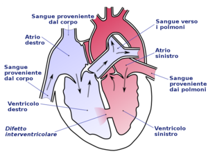 Ventricular septal defect-it.png