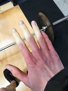 3 finger raynauds.jpg
