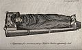 A body covered with a blanket lying on a special heated bath Wellcome V0016532.jpg