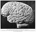 Adult male brain - natural size Wellcome L0001030EB.jpg