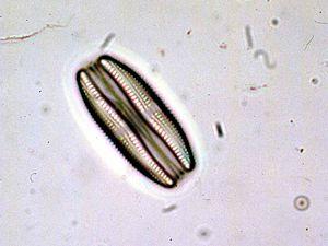 Amphora (diatom) - Amphora ovalis