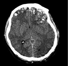 Brain trauma CT.jpg