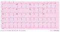 De-AW00002 (CardioNetworks ECGpedia).png