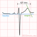 De-LastigeQT2 (CardioNetworks ECGpedia).png