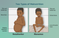 Depiction of children suffering from two types of malnutrition.png