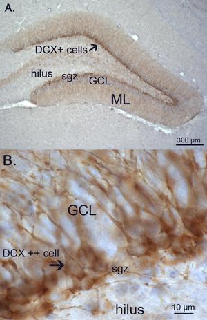 Adult neurogenesis - Image: Doublecortin expression