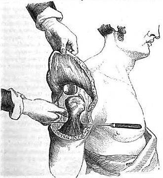 Flap (surgery) - Image: Erichsen Flap