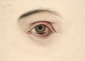 Eye with a melanotic sarcoma Wellcome L0061861.jpg