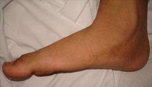 Flat feet - Wikipedia