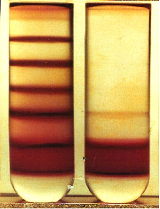 Malaria culture - Image: Gradient centrifugation of infected Red Blood Cells