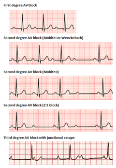 Types of heart block