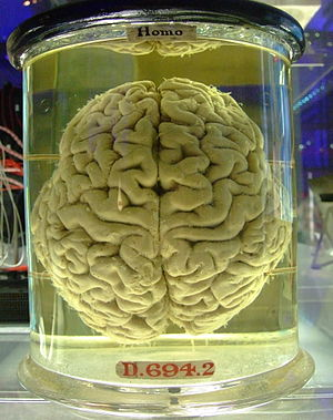 a human brain in a jar