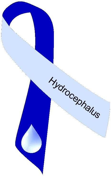 Hydrocephalus ribbon two tone blue
