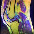 Knee MRI, T1T2PD 11.jpg