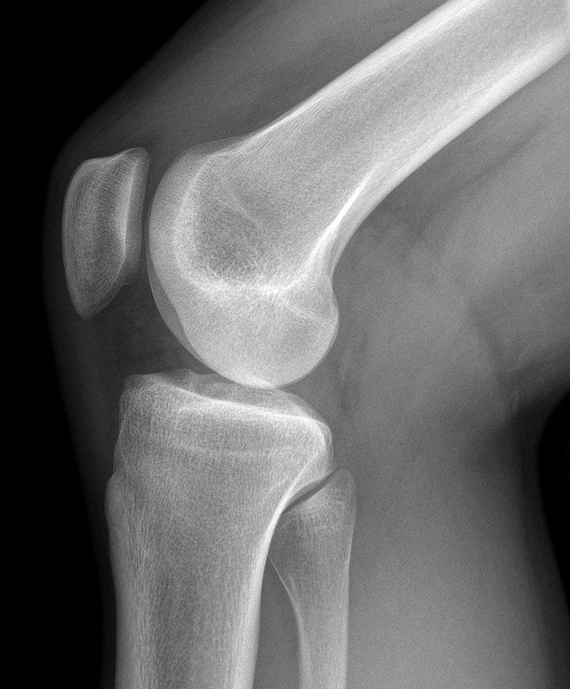 Articulación de la rodilla - Wikiwand