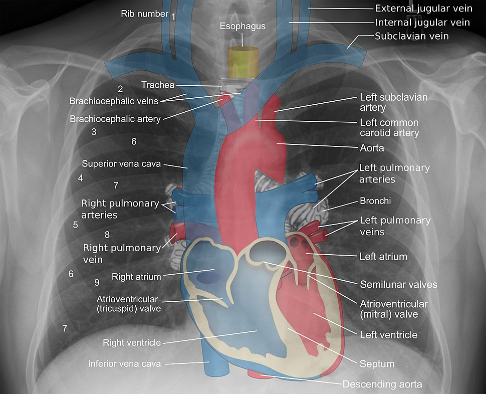 Mediastinal structures on chest X-ray, annotated