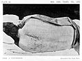 Medico-chirurgical transactions; a tumour of the spinal cord. Wellcome L0026622.jpg