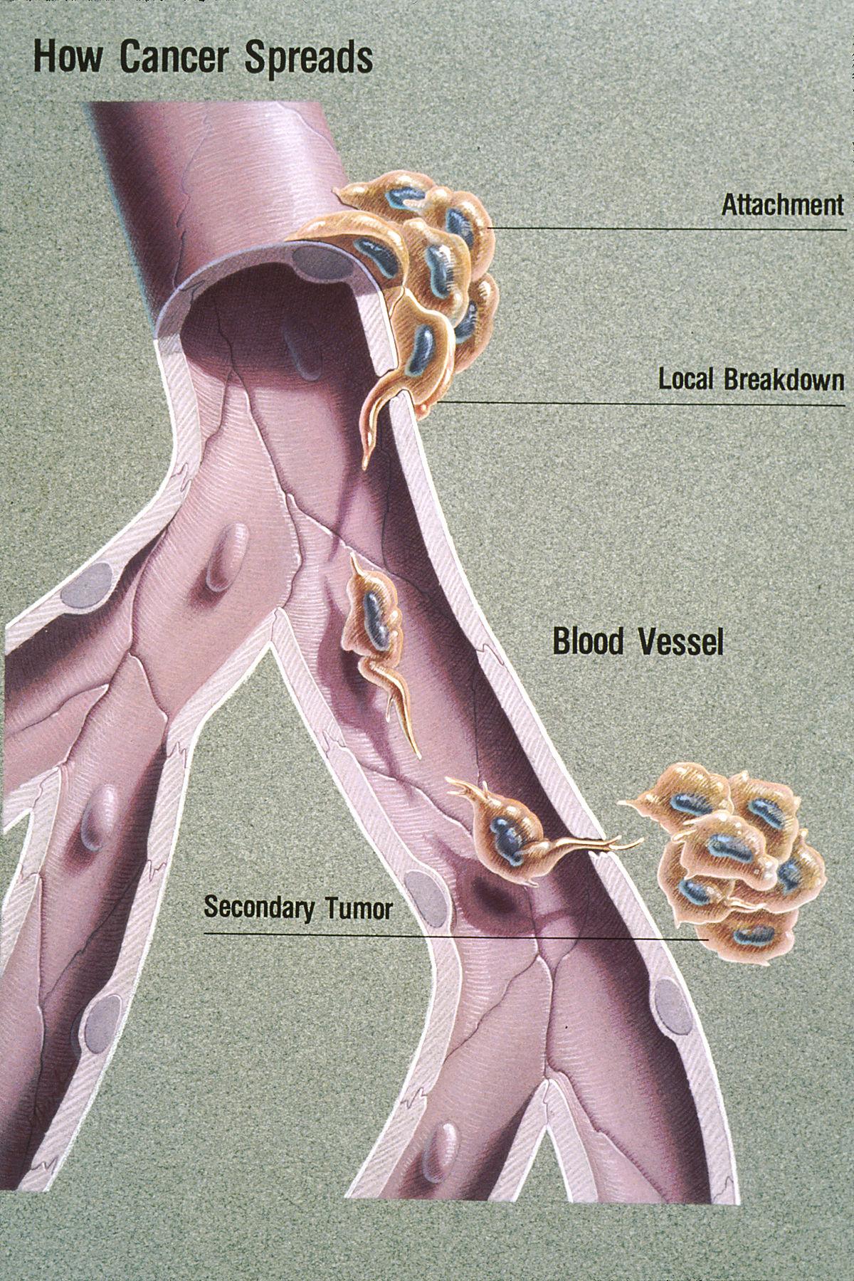 Metastasis Wikipedia