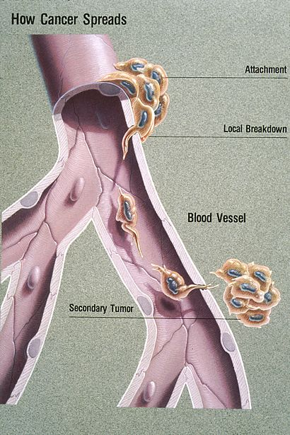 Metastasis illustration.jpg