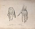 Muscles and ligaments of the hand; two figures of écorché ha Wellcome V0008185EL.jpg