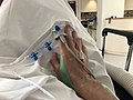 Perfusion en intraveineuse dans la main.jpg