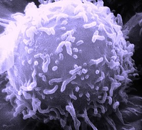 SEM Lymphocyte.jpg