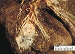 Squamous cell carcinoma involving a subsegmental bronchus.jpg