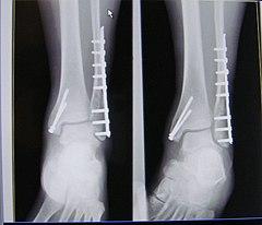 fracture trimalléolaire