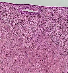 Uterine leiomyoma with lining.jpg
