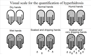 Visual scale for the quantification of hyperidrosis.tif