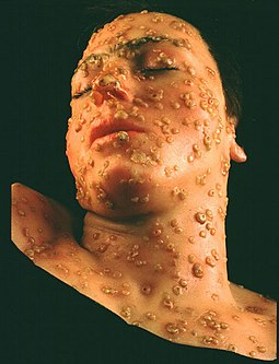 European-introduced smallpox devastated the indigenous populations of the Americas Wax model of smallpox lesions on the face of a 15 year old boy.jpg