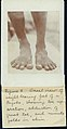 """Fig. 2- Dorsal view of weight bearing feet of a Bagabo."" (Department of Anthropology, 1904 World's Fair).jpg"