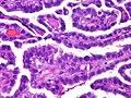 Adenocarcinoma, papillary subtype (4563169254).jpg